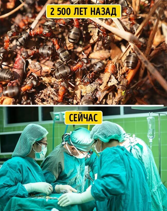 Муравьи-хирурги
