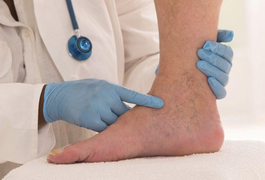 сосуды на ноге