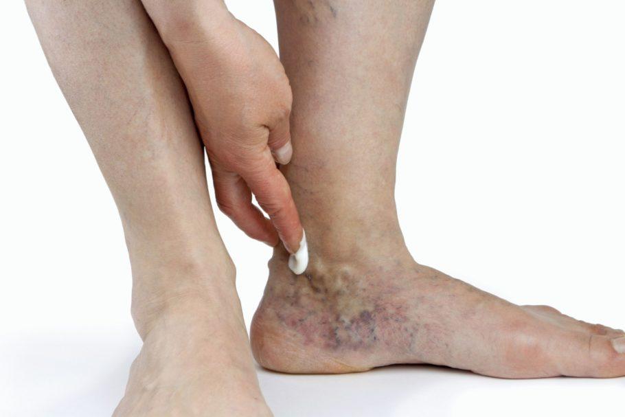 мазь наносят на ногу с варикозом