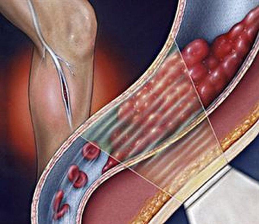 рисунок вены ног
