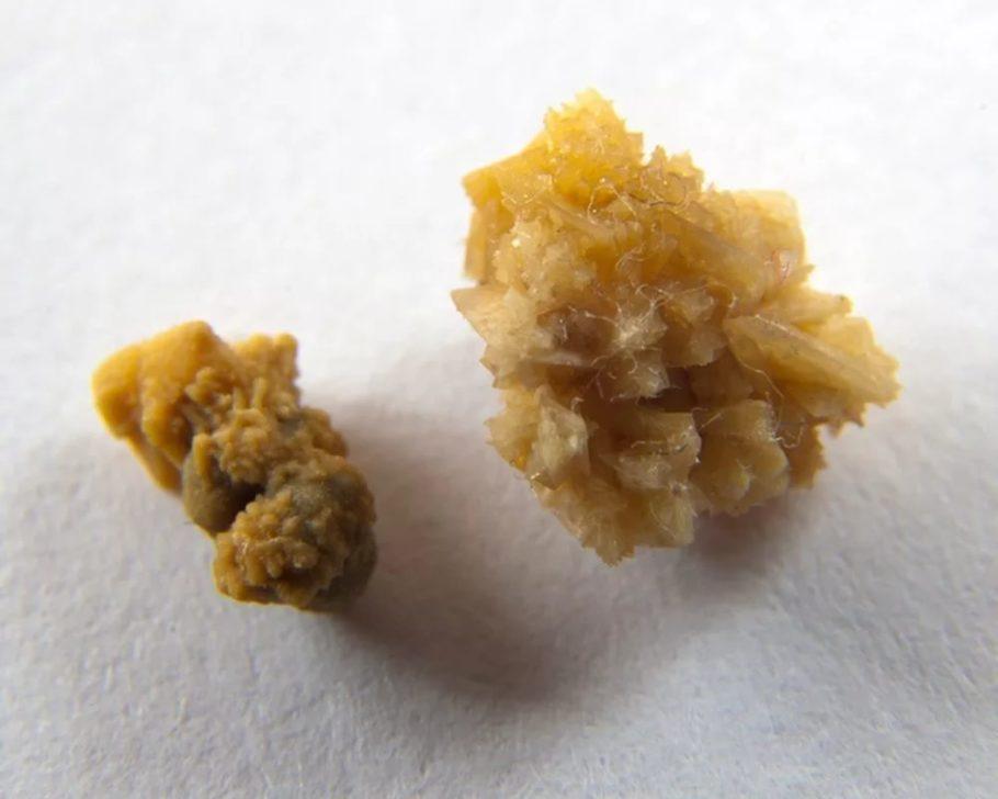 камни из предстательной железы