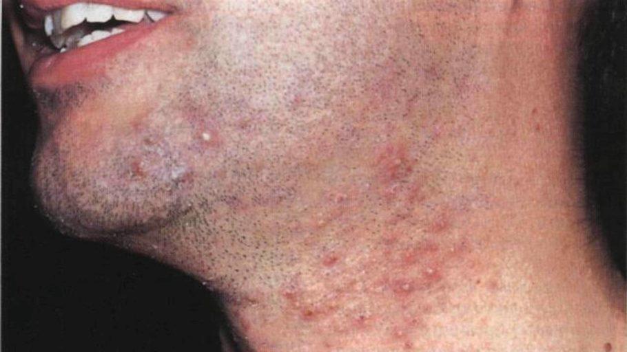 раздражение на коже после бритья