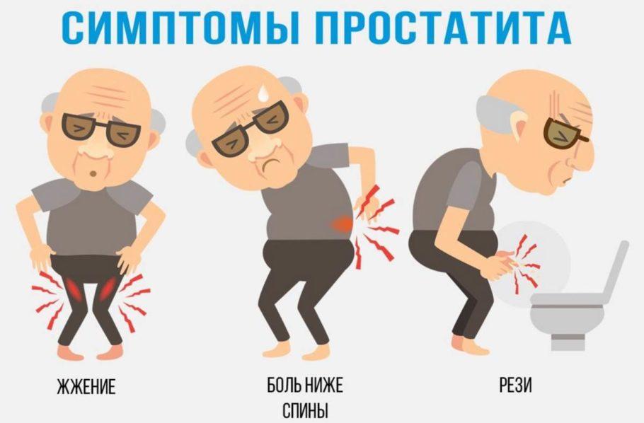 рисунок: симптомы простатита