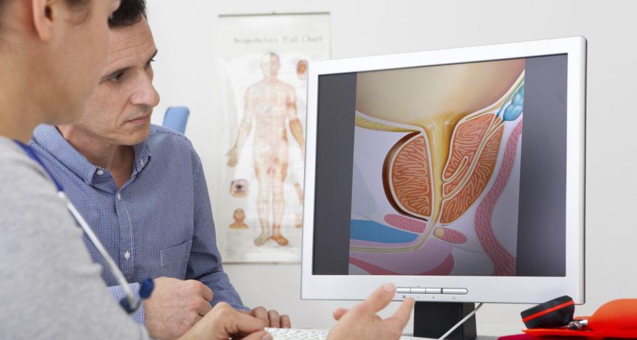 мужчина с врачом смотрят на рисунок простаты