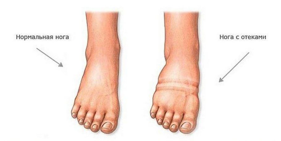 рисунок нога с отёком