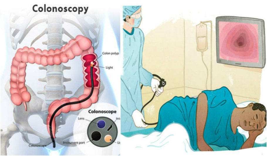 Схематический рисунок процеса проведения процедуры колоноскопии