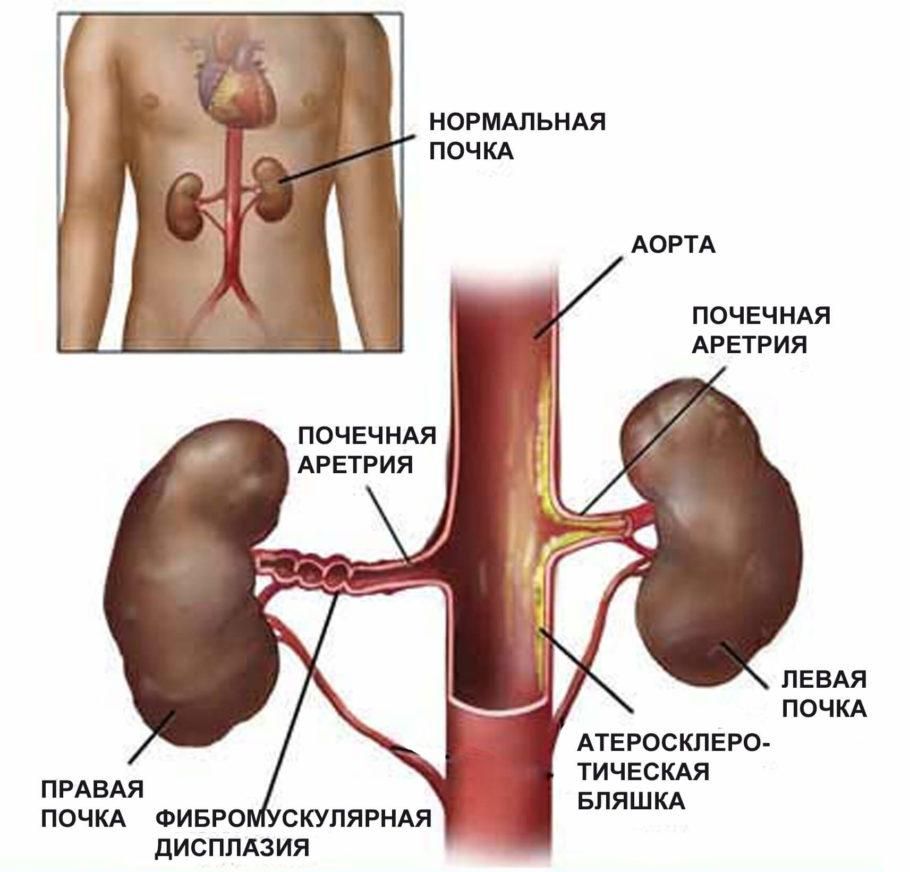 Схема расположения почек в организме человека