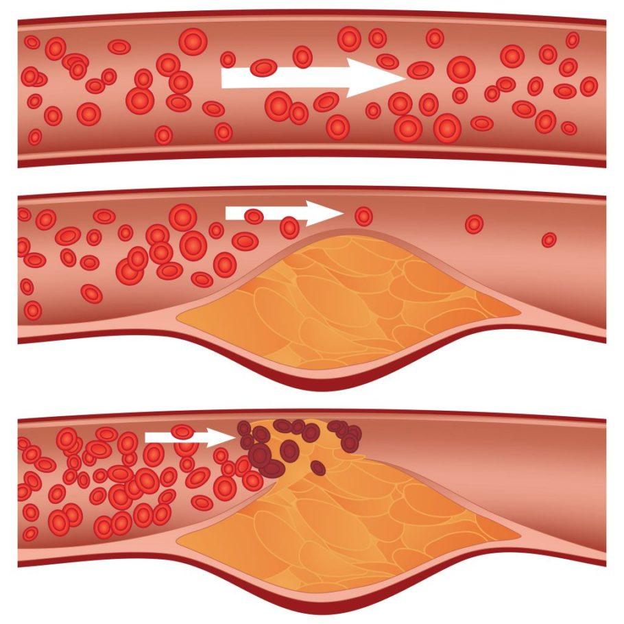 Схема движения крови по больным и здоровым сосудам