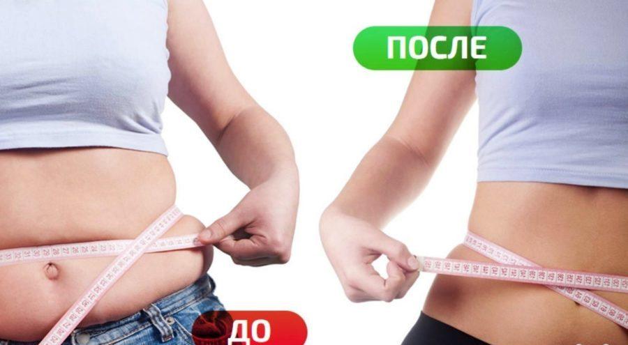 живот до и после похудения