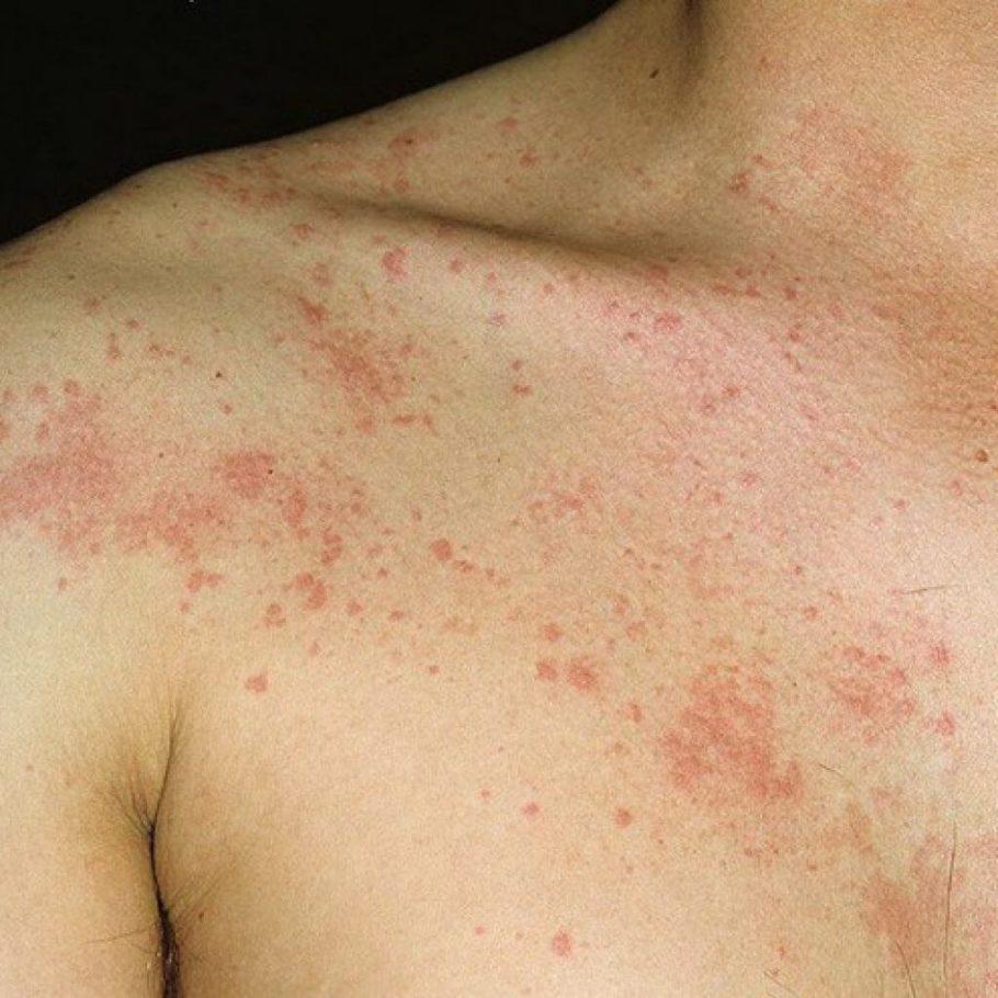 Алергическая реакция на теле