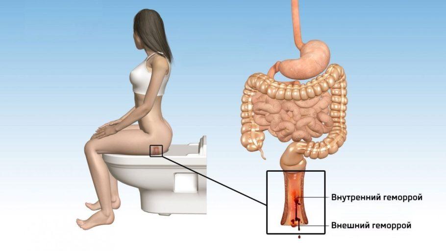 Схематическое расположение внутреннего и внешнего геморроя в теле человека