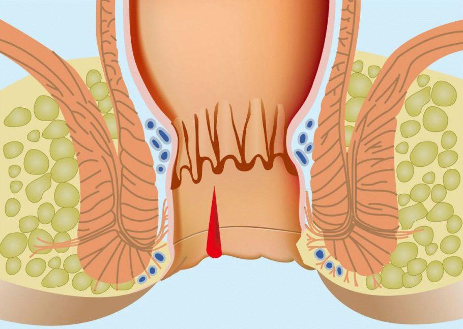 Схематическое отображение геморроидального узла