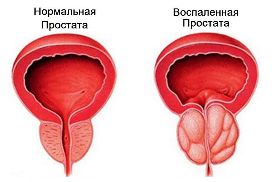 Нормальная и воспалённая простата