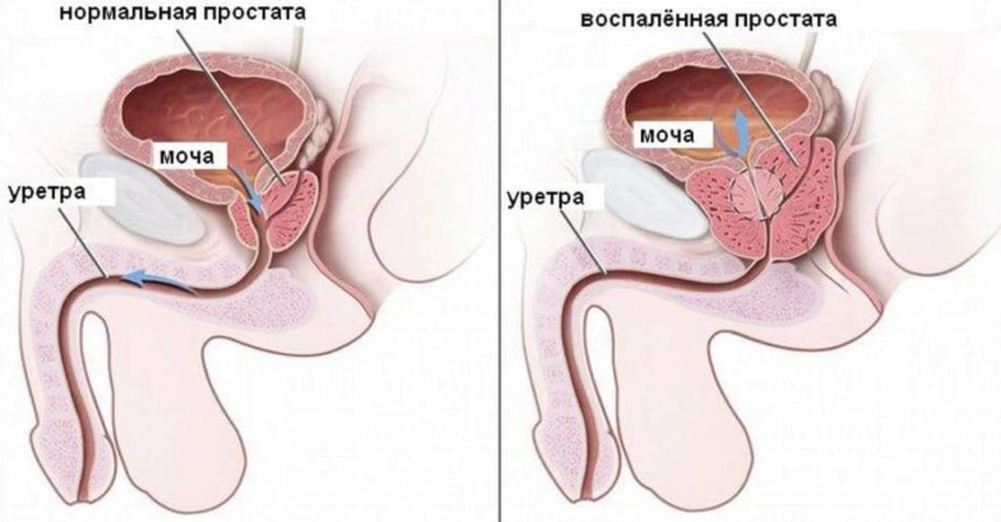 рисунок: простата в разрезе