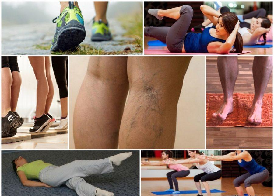 коллаж ноги вены упражнения