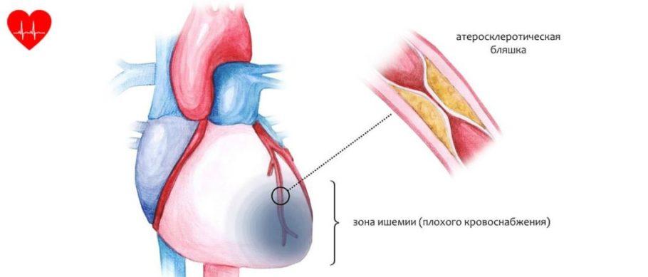 Рисунок сердца с зоной ишемии