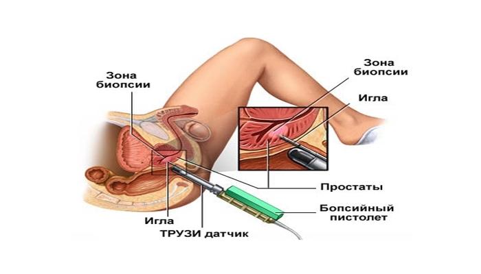 Причины и симптомы наботовы кисты шейки матки
