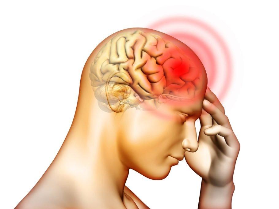 Рисунок мозга и головной боли