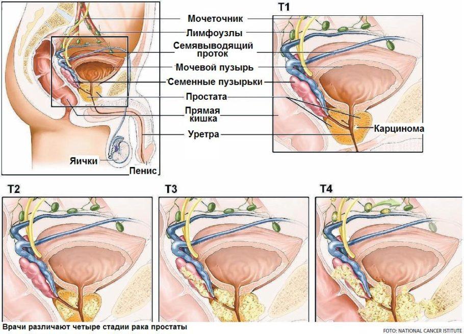 рисунок стадии рака простаты