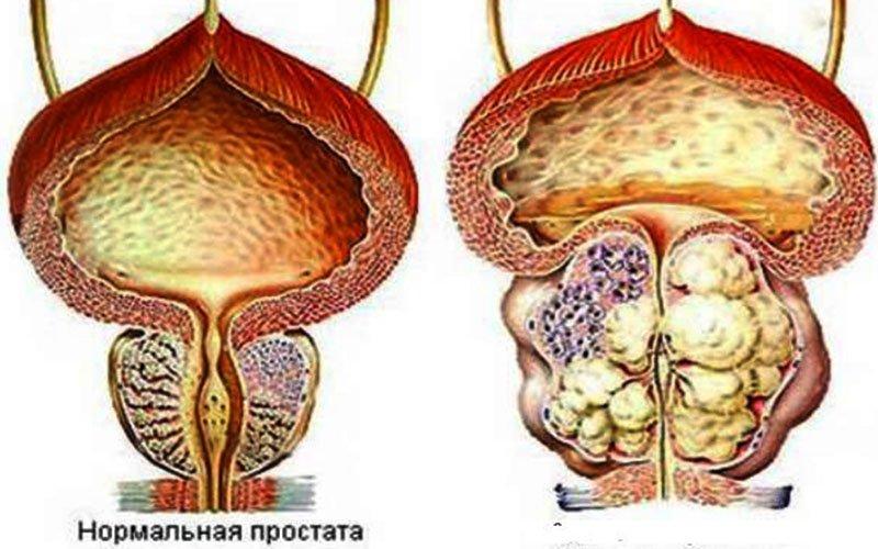 рисунок мужская простата