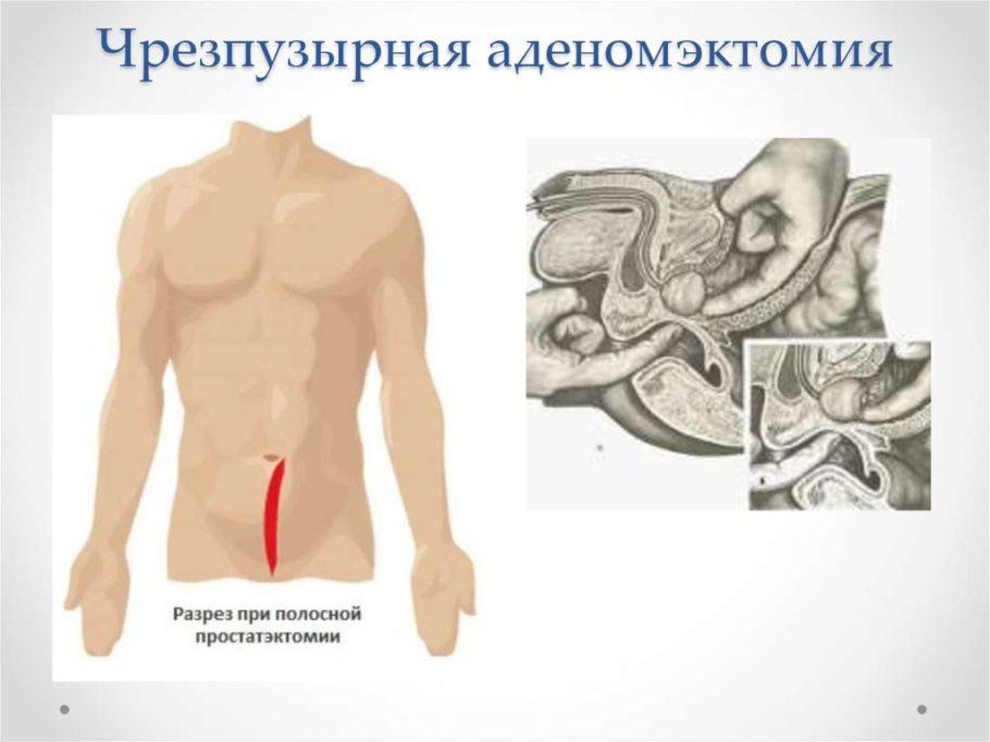 рисунок чрезпузырная аденомэктомия
