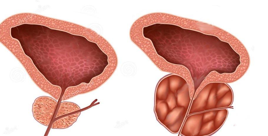 рисунок простата