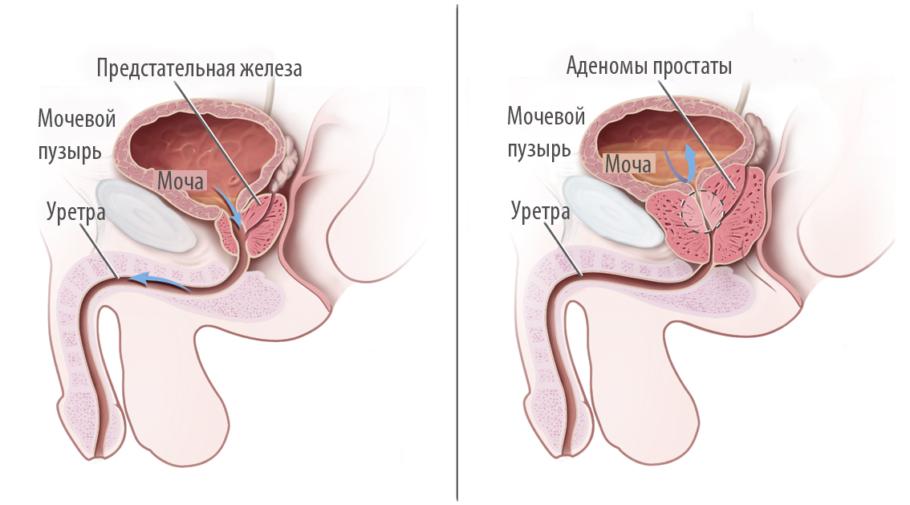 рисунок: предстательная железа в разрезе