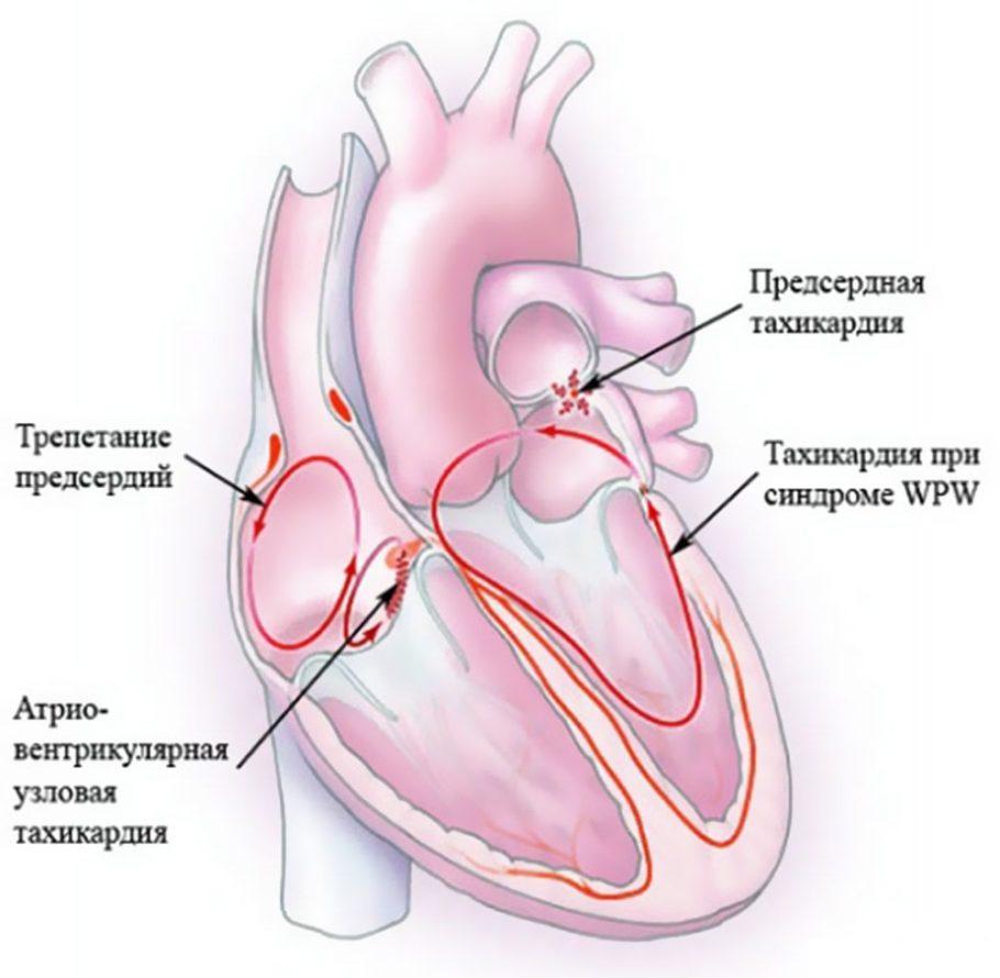 Схематический рисунок сердца с болезнями