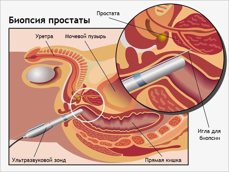 рисунок биопсия простаты