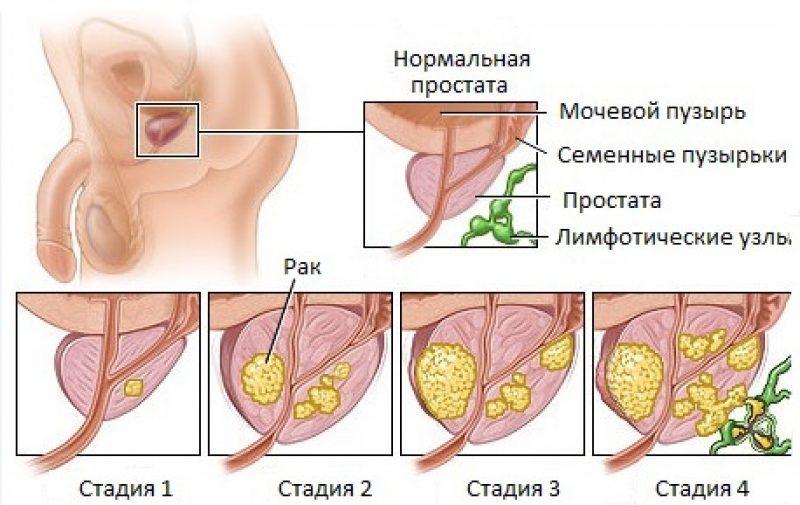 рисунок стадии простатита