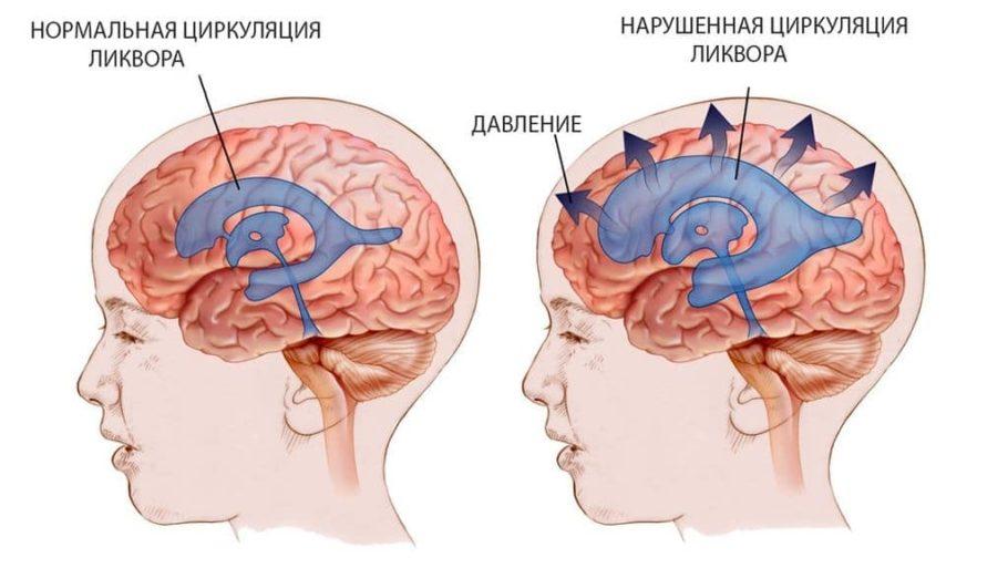 Циркуляция ликвора в мозгу