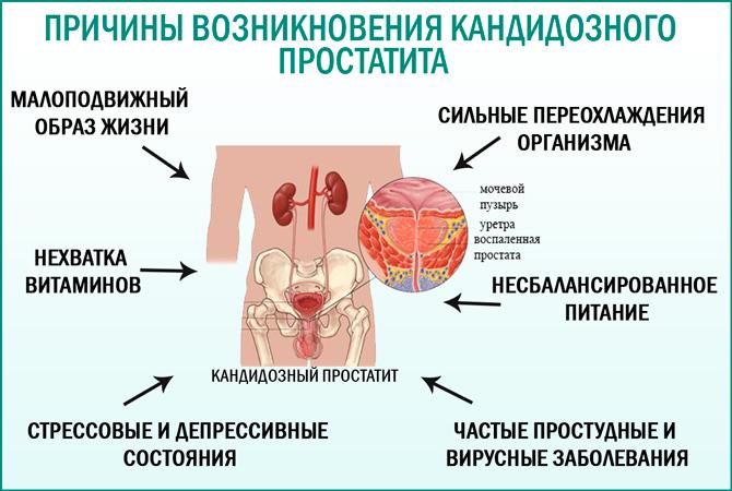 рисунок причины возникновения кандидозного простатита