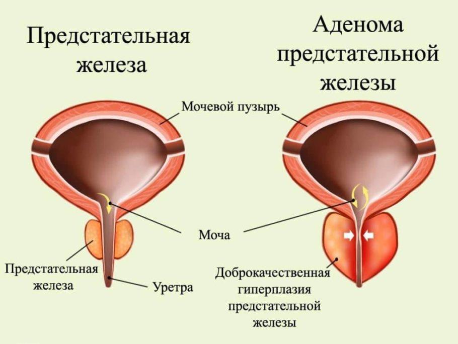 рисунок предстательная железа