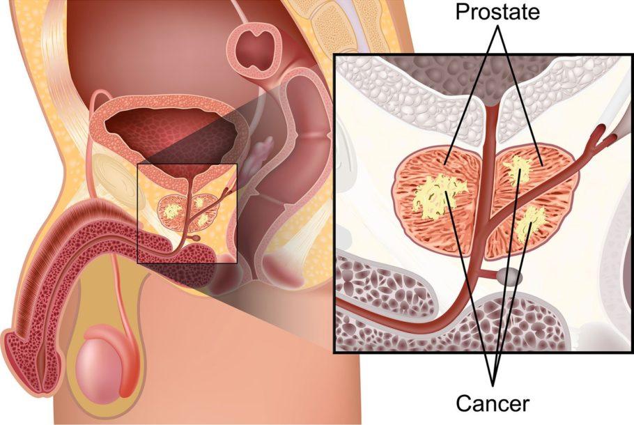 рисунок рак простаты