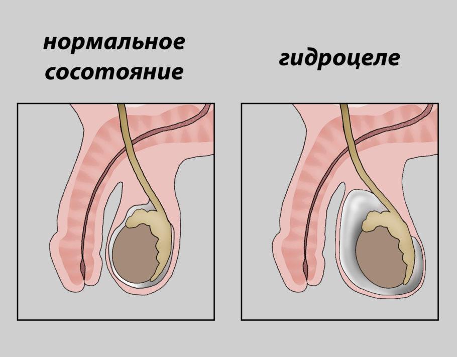 рисунок гидроцеле