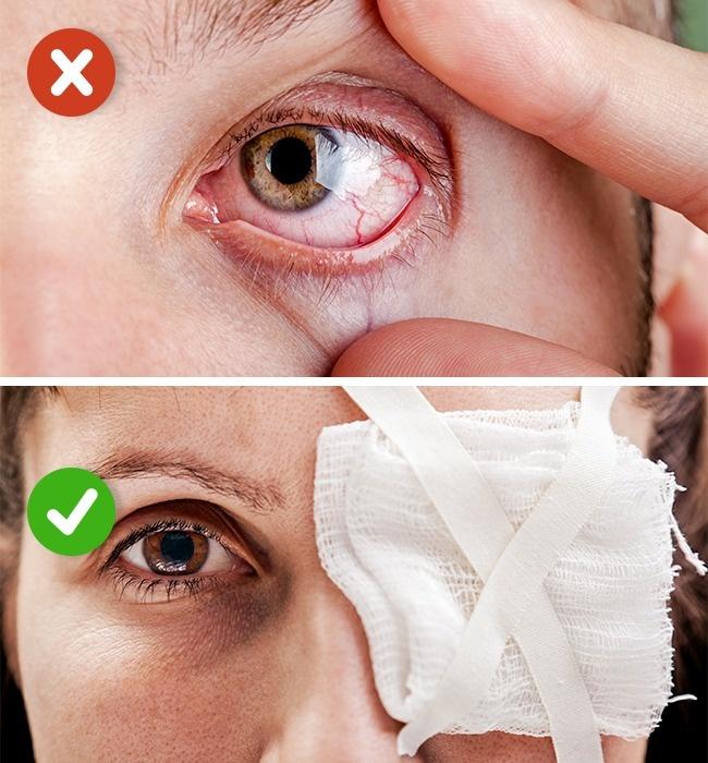 Стерильная повязка на глазу