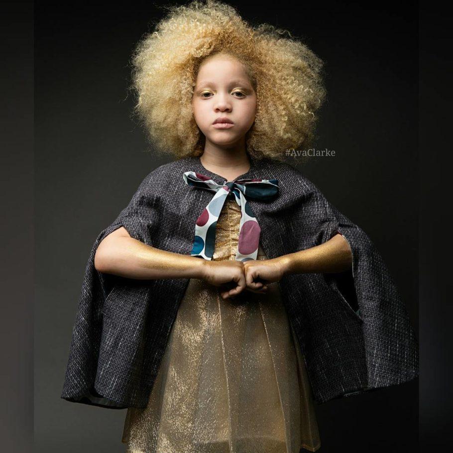 Светлые волосы, зелено-голубые глаза и розовые губы девочки покорили мир моды