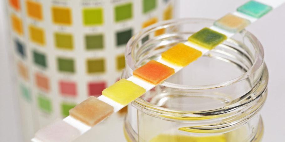 До проведения анализа оценивается цвет и прозрачность мочи