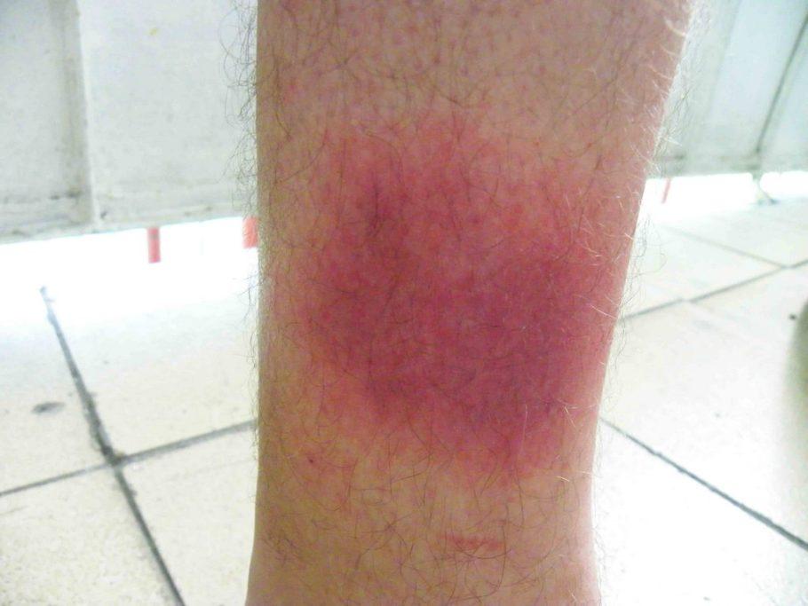 Сосуд может лопнуть в любой части ноги, проявив себя некрасивым синяком либо сосудистой сеткой (зависит от величины сосуда)