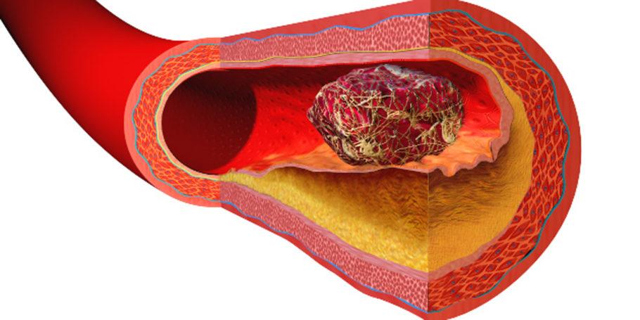 Жидкое состояние крови поддерживается благодаря слаженной работе свертывающей и противосвертывающей систем
