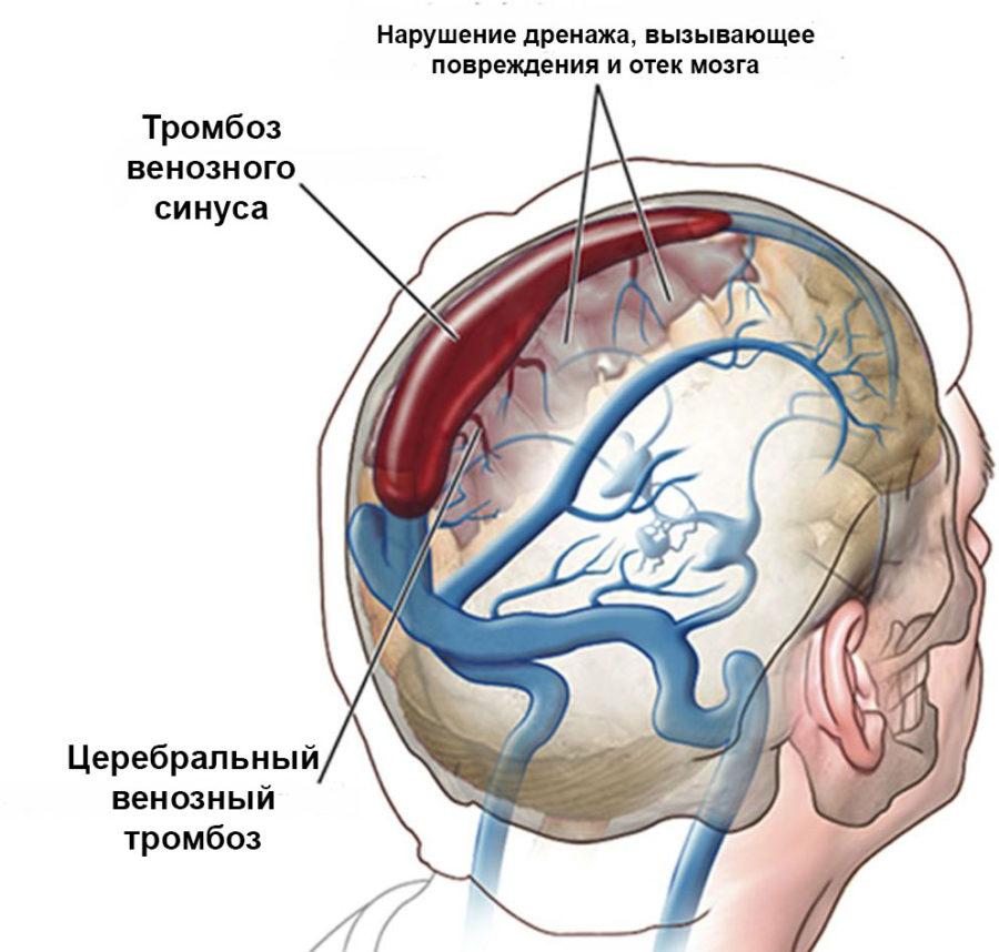Клинические признаки тромбоза крупной мозговой артерии сводятся к симптомам инсульта: интенсивная головная боль, потеря чувствительности и двигательной функции