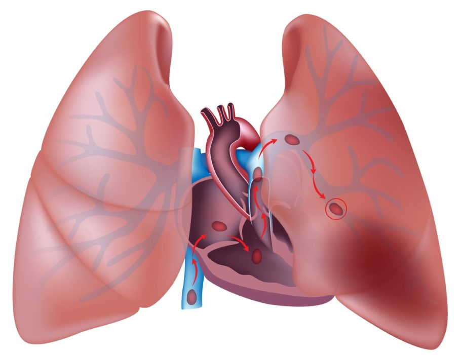 Симптомы тромбоэмболии ветвей легочной артерии состоят во внезапно возникшей острой боли в груди, выраженной одышке вплоть до остановки дыхания, цианозе, нарушениях сердечной деятельности