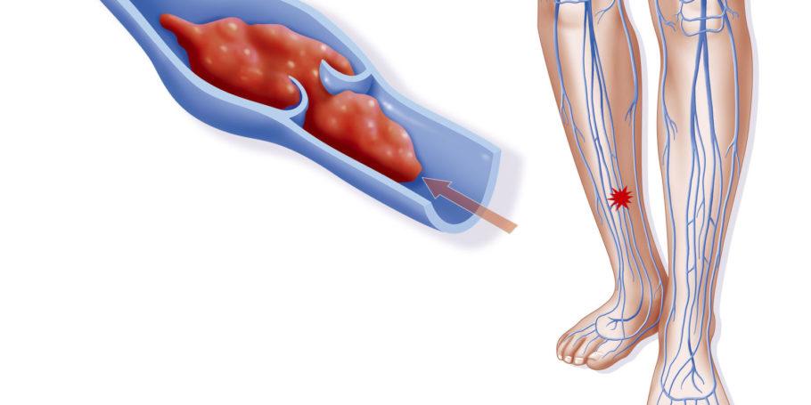 Жидкое состояние крови и нормальный ее ток обеспечивают протекание правильного обмена веществ в тканях