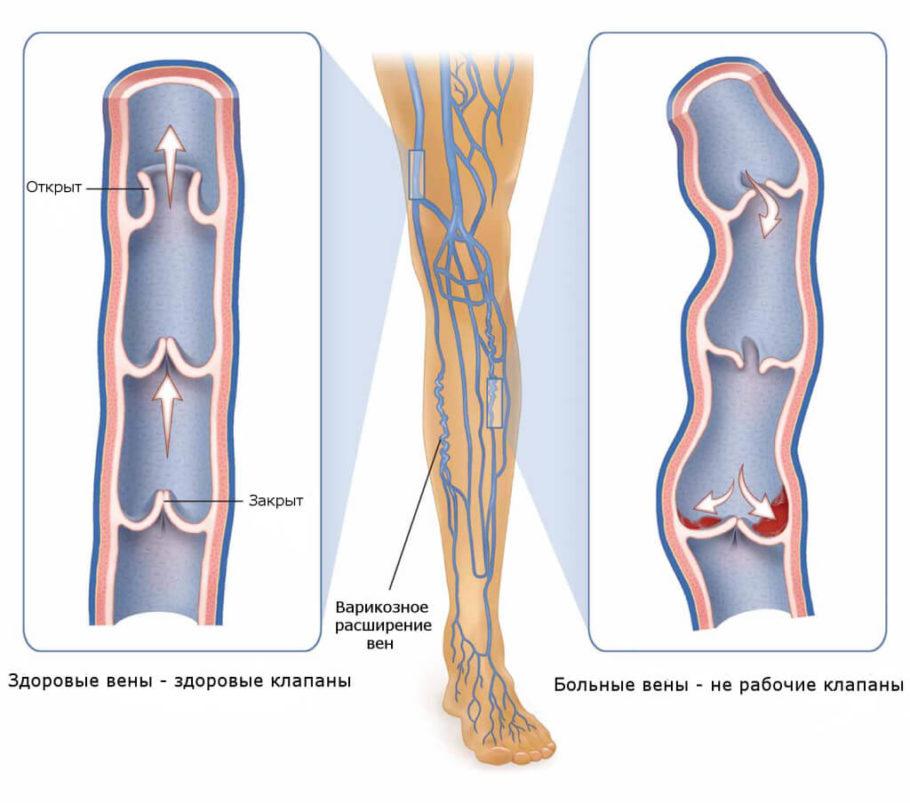 Склеротерапия — это процедура, не носящая хирургического характера, которая позволяет действенно устранять варикозно расширенные вены
