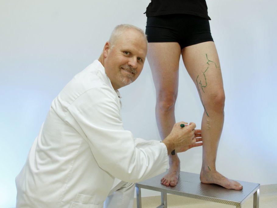 Несмотря на то что зачастую диагноз варикоза нижних конечностей не вызывает сомнения, пациент обязательно должен пройти комплексное обследование