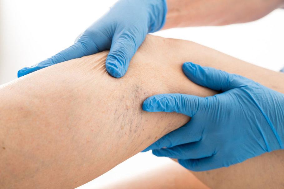 Данная методика применима при отказе больного от хирургического удаления вен, цель которого – устранить расширенное русло пораженной вены