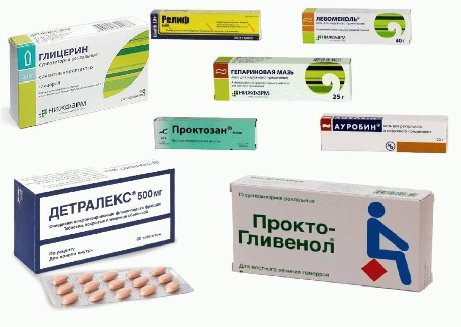 Лекарства при геморрое 2 степени