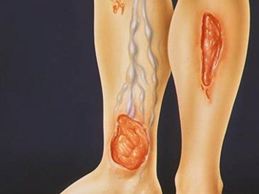 рисунок вены и язвы ног
