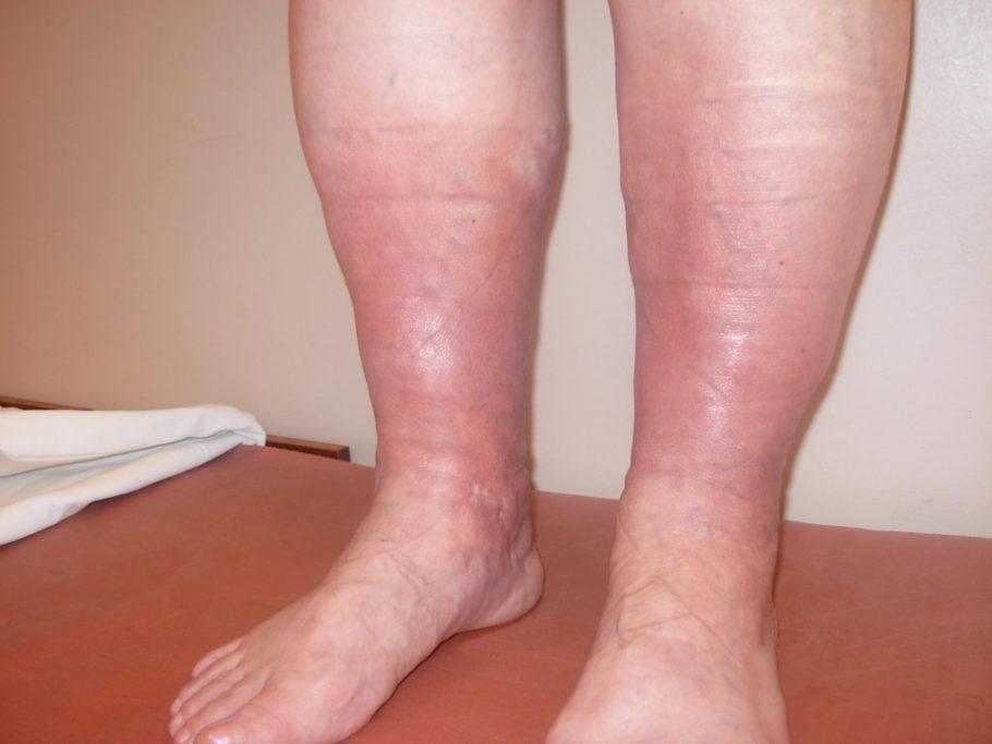 ноги тромбофлебит