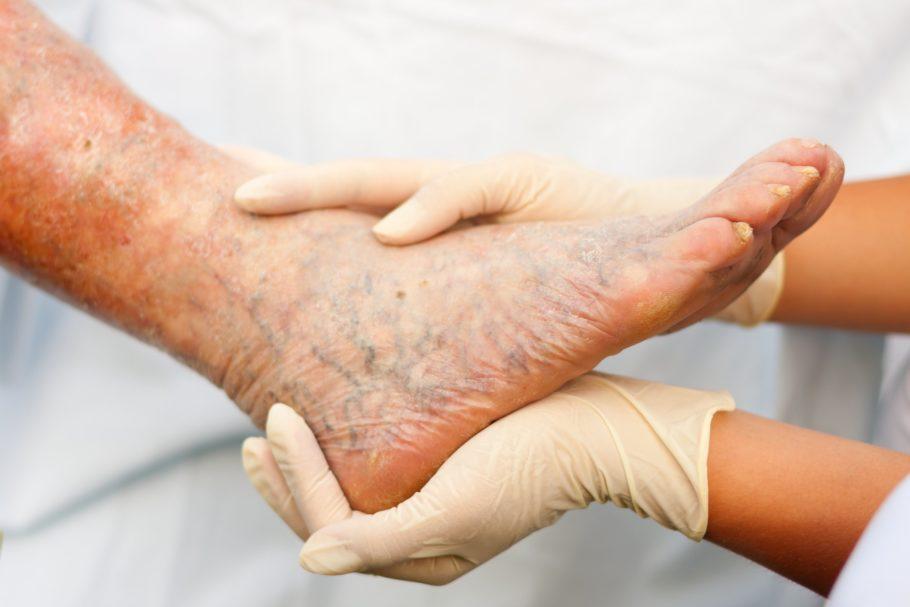 нога тромбофлебит